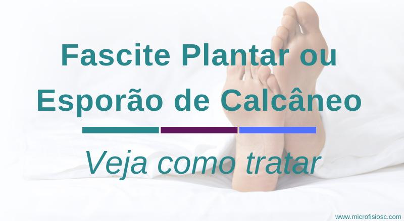 Fascite Plantar - Esporão Calcâneo